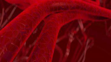 Sztywność tętnic