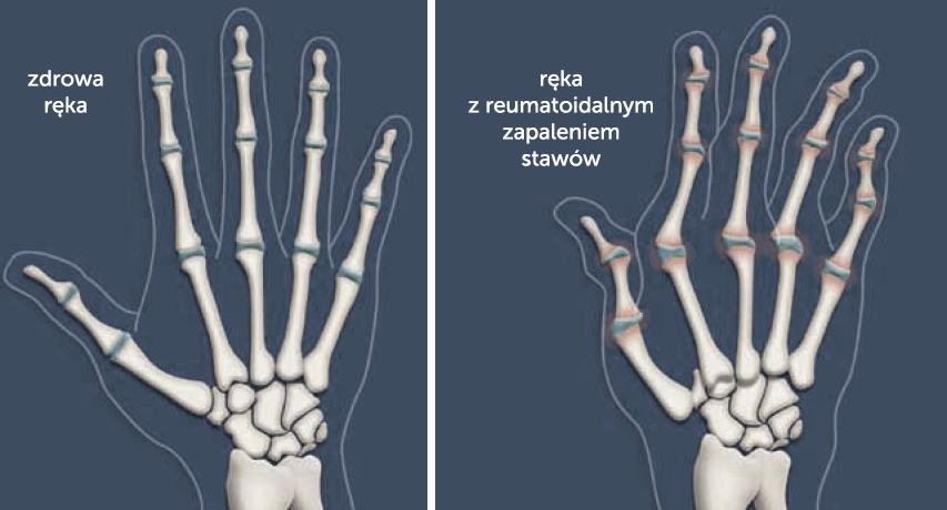 Kościec zdrowy dłoni i z deformacjami w wyniku RZS