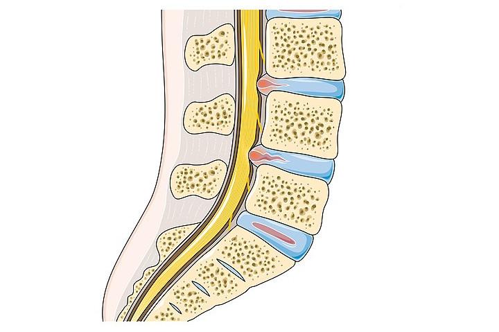 Uszkodzenia dysków (krążków międzykręgowych)