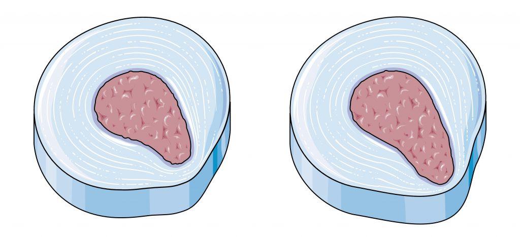 Degeneracja krążków międzykręgowych